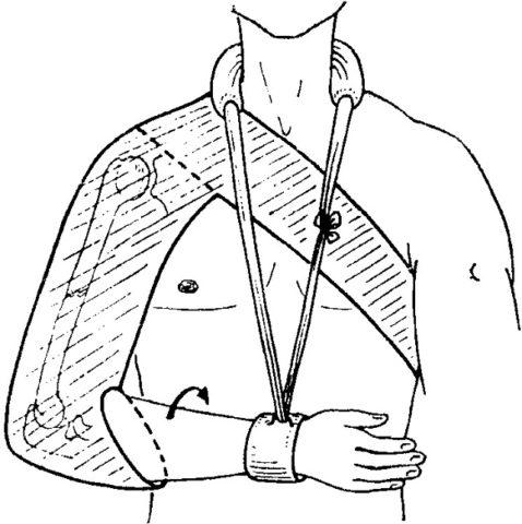 Особенности лечения перелома плечевой кости