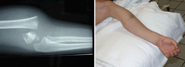Перелом плечевой кости без смещения реабилитация
