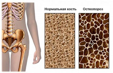 Остеопороз меняет состав костей