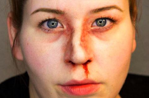 Перелом костей носа возникает при механическом воздействии на эту область.