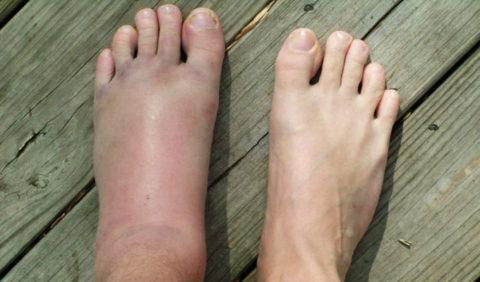 Плюсневые кости и их повреждения