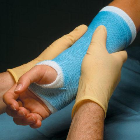 Почему гипс при переломе необходим?