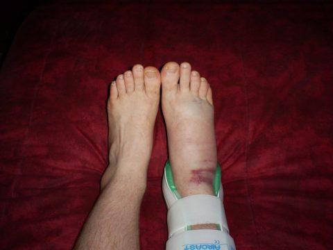 Повреждение костей голеностопного сустава — распространенная травма