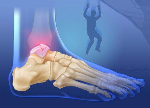 Повреждение таранной кости может произойти при падении с высоты на прямые ноги.