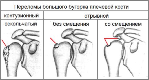 Разновидности травмы большого бугорка плеча