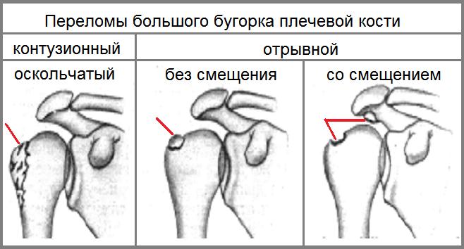 Перелом бугра плечевого сустава: признаки и лечение
