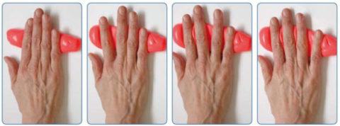 Разработка пальцев травмированной конечности