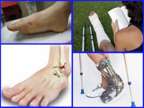 Рекомендации для лечения повреждений