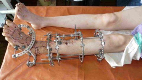 Рекомендации к проведению лечения перелома костей голени