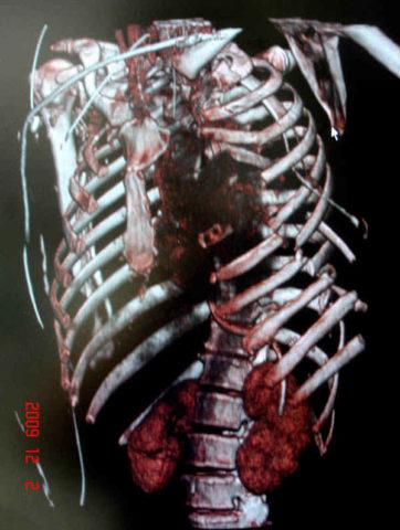 Рентгенологический снимок перелома ребер