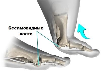 Сесамовидные кости