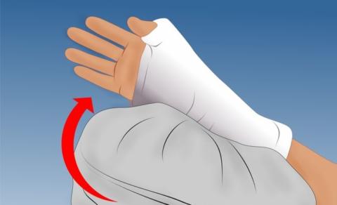 Сидя или лёжа, старайтесь держать сломанную руку в приподнятом положении