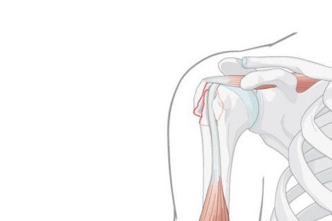 Симптоматические особенности переломов диафиза плеча