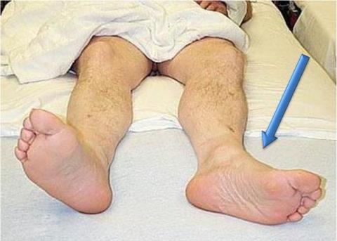 Симптомы вертлужного перелома – наружная ротация и укорочение ноги