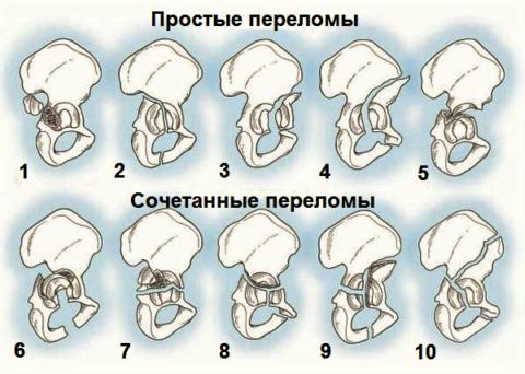 Типичные виды изломов вертлужной впадины