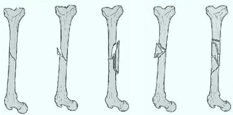 Типы диафизарных перелом плечевой кости