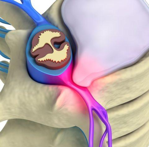 Травма с разрывом межпозвоночных дисков