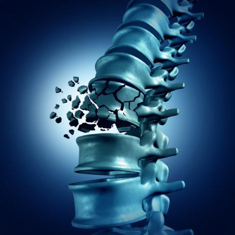 Травма возникает в результате вертикально направленной силы