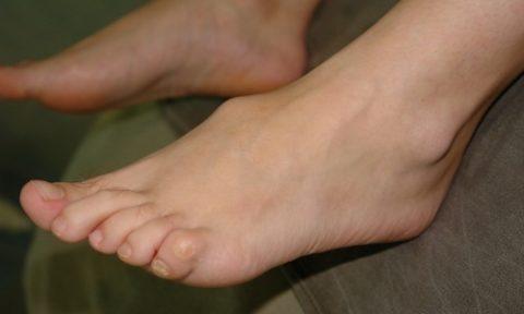 Видимая деформация при повреждении ладьевидной кости.