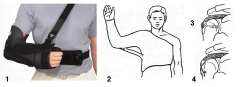 Виды иммобилизации и остеосинтеза при сломах большого бугра плеча