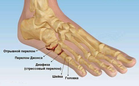 Виды повреждений плюсневой кости.