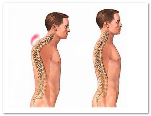 Выраженность травмы грудных позвонков
