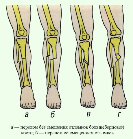 Будет ли использован метод, зависит от особенностей травмы