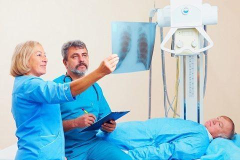 Диагностика и назначение лечения при переломах ребра