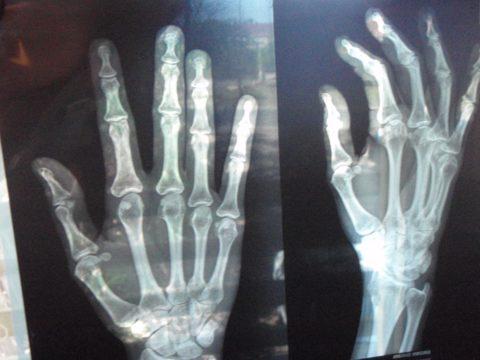Для диагностики травмы снимок делают в двух проекциях