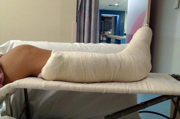 Фото поломанной ноги