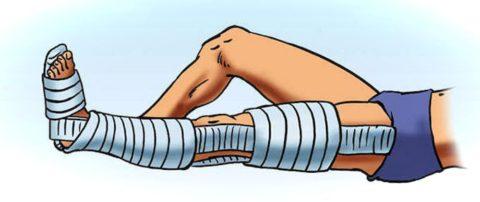 Фиксация ноги после снятия вытяжения