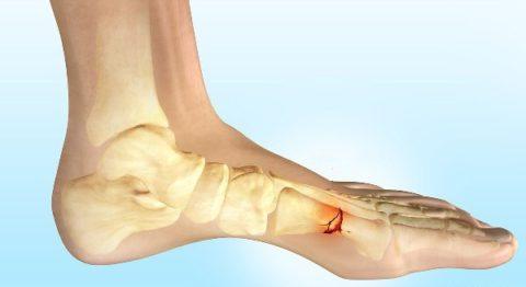 Фото: нарушенная целостность кости в стопе