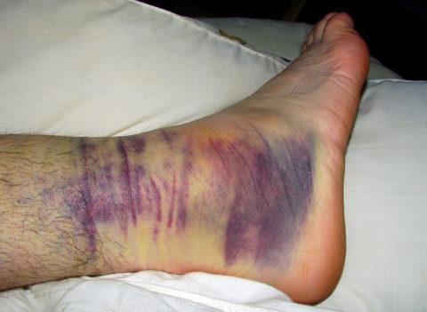 Фото: особенности повреждения щиколотки