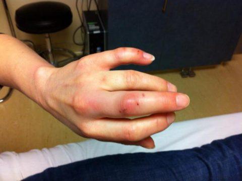 Иногда осложнением укушенных ран может стать артрит.