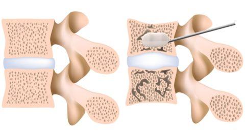 Малоинвазивная кифопластика