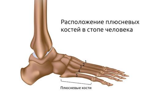 На фото плюсневые кости стопы человека.