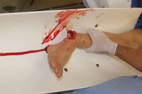 Наличие открытой раны при травмах стопы