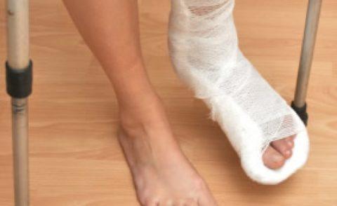 Наложенный гипс на стопу после повреждения