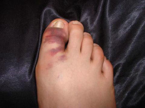 Отеки как симптом нарушенной целостности фаланг пальцев