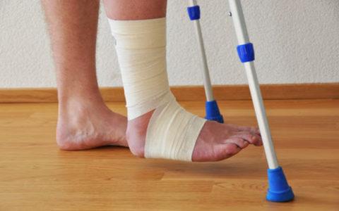 Перелом кости конечности требует времени для полного восстановления