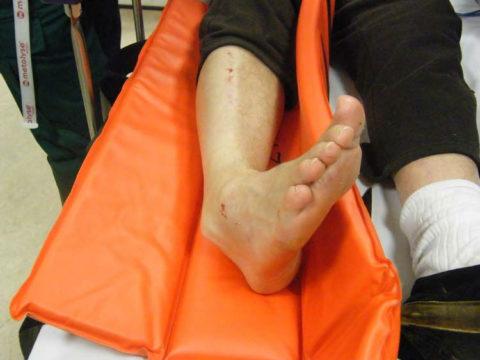 Перелом лодыжки и вывих голеностопного сустава
