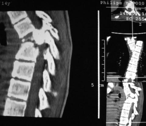 Перелом тела 6 позвонка