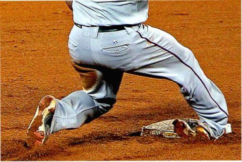 Поворот ноги вокруг оси как причина ротационного перелома