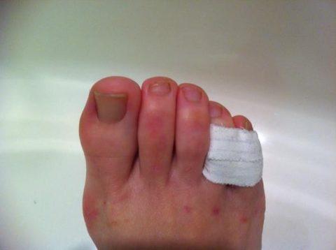 Повязка соединяющая поврежденный и здоровый пальцы на ноге
