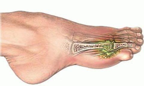 Результат падения тяжести на пальцы ноги