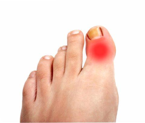 Сломанный палец ноги не всегда легко определить