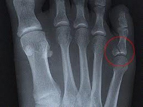 Снимок для подтверждения диагноза