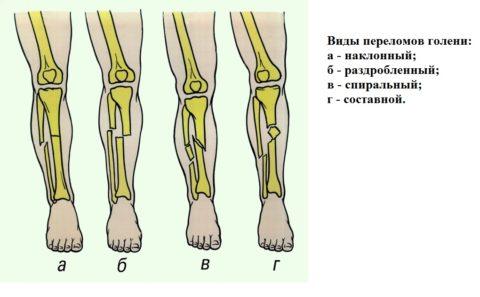 Специалисты различают разные виды переломов голени