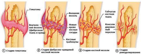 Стадии сращивания костей