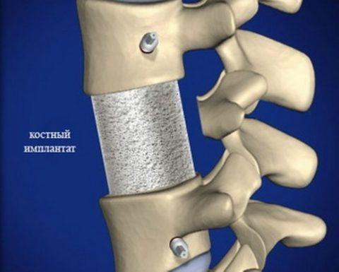 Вид костного имплантата
